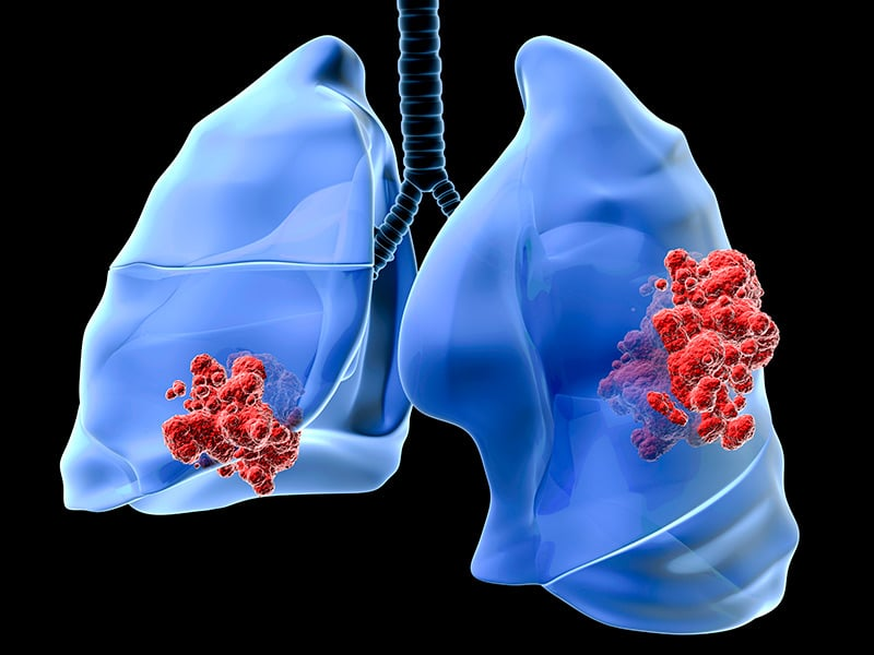 lung_cancer_800x600